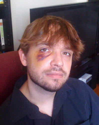 Dorian Barton, a 30-year-old cookie maker, suffered a broken right arm, black eye, swollen limbs and a bruised back when he was arrested by police near Queen's Park during the G20 Summit in June, 2010